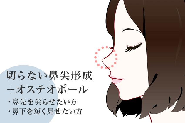 切らない鼻尖形成+オステオポール