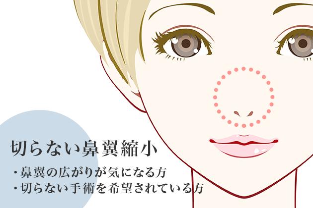切らない鼻翼縮小(団子鼻の治療)